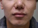 症例写真 術後 プレミアムPRP皮膚再生療法鼻尖縮小(外側法)+小鼻縮小(1ヶ月後)