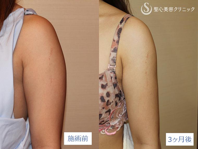 症例写真 術前術後比較 ベイザーリポ2.2脂肪吸引 二の腕