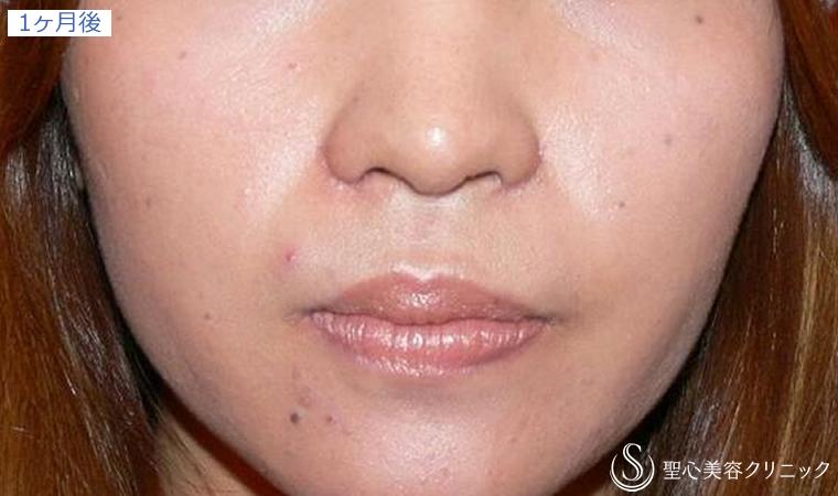 症例写真 1ヶ月後 鼻の整形