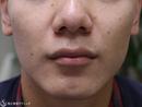 症例写真 術前 鼻尖縮小(外側法)+小鼻縮小(1ヶ月後)