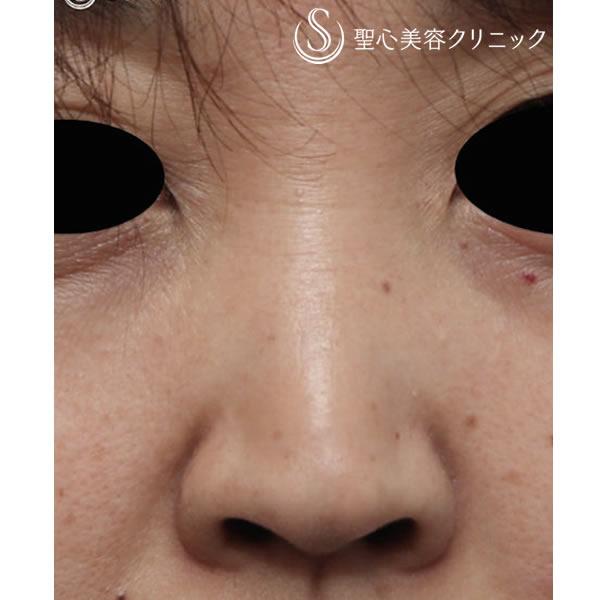 症例写真 術前 鼻の整形