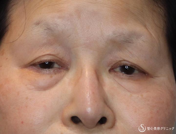 症例写真 術前 プレミアムPRP皮膚再生療法眼瞼下垂(切開法/腱膜縫縮法)+眉下切開法