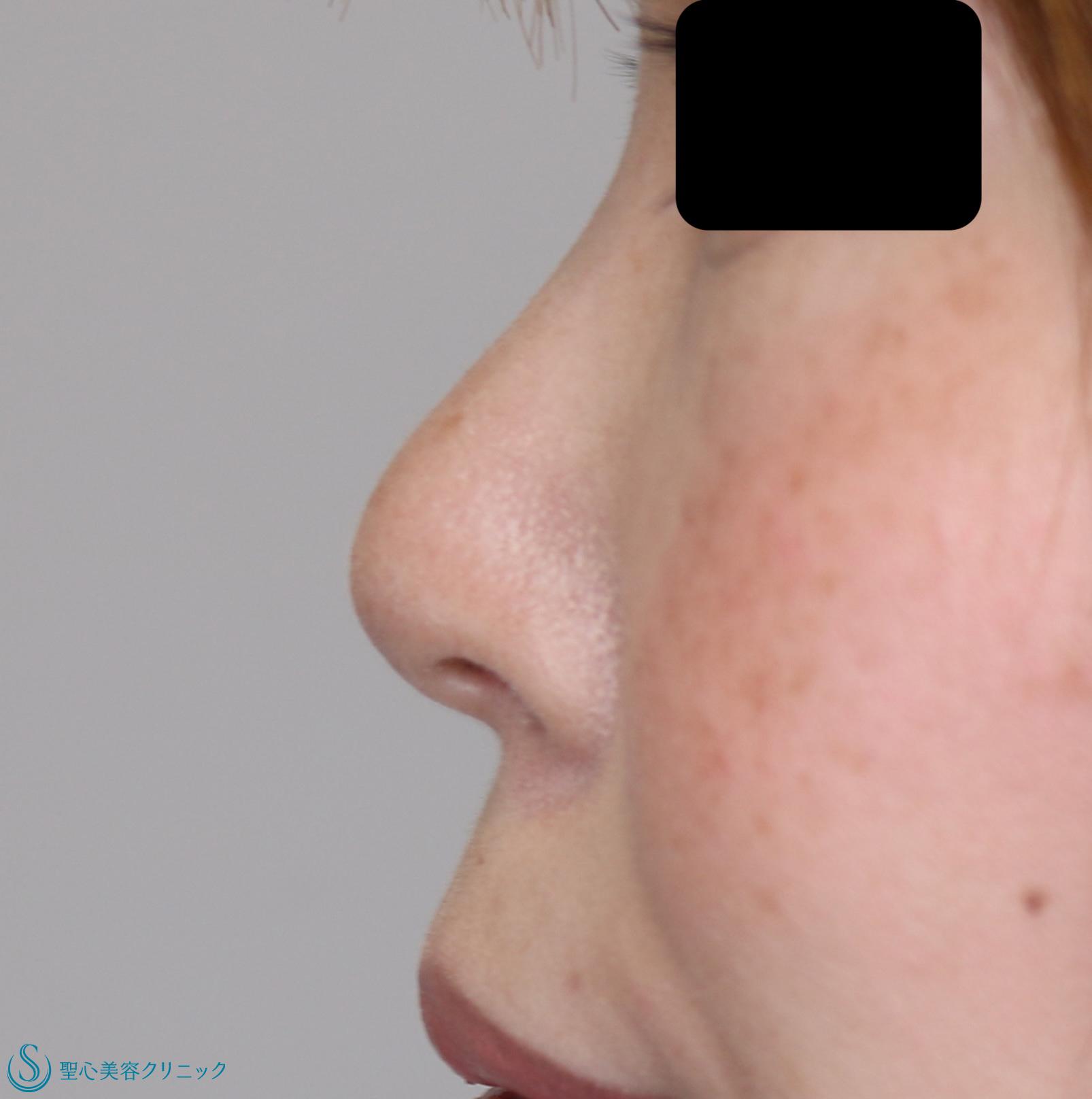 症例写真 術後 鼻尖縮小+鼻尖形成(耳介軟骨移植)+鼻孔縁下降術