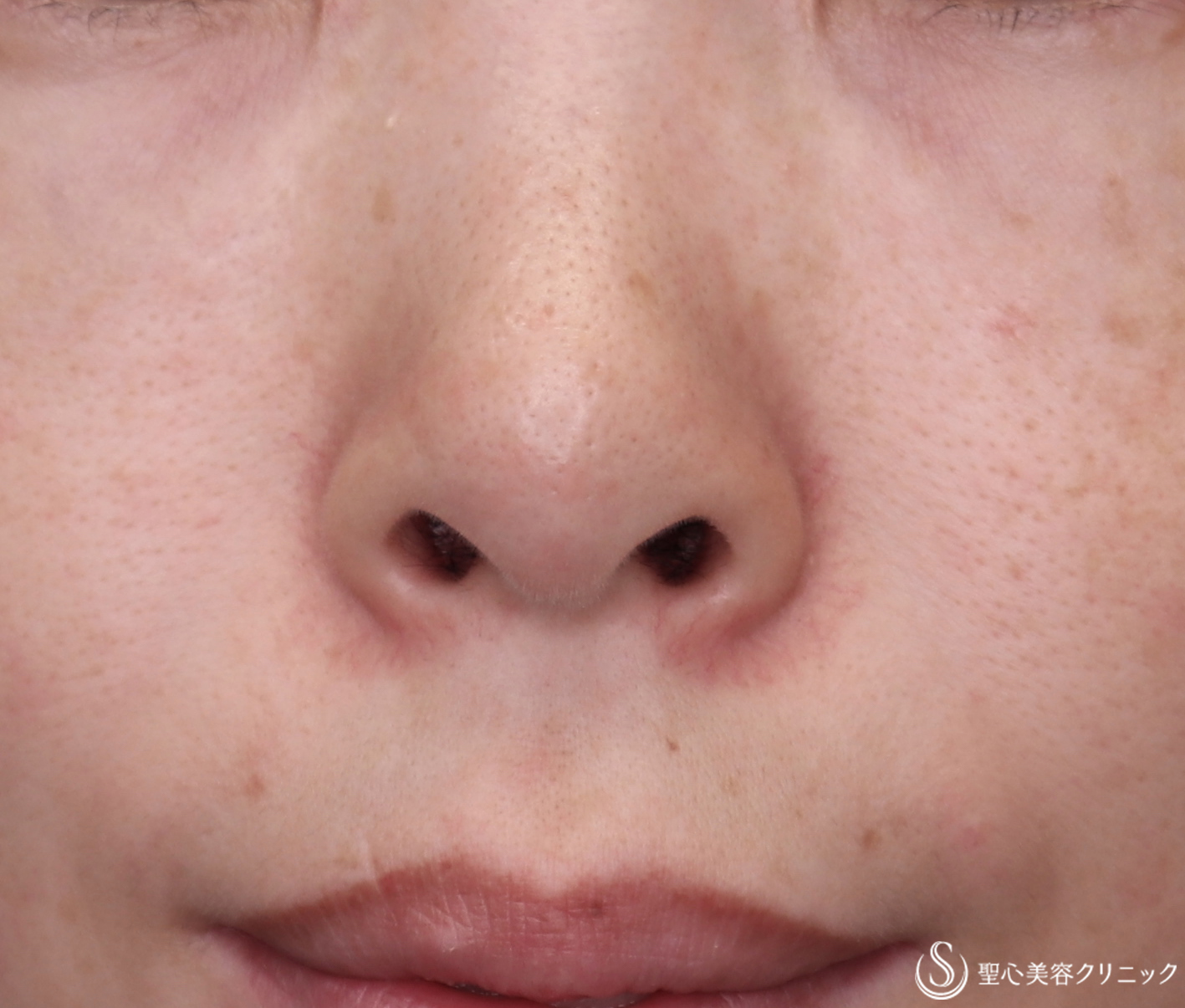 症例写真 術前 鼻孔縁下降術