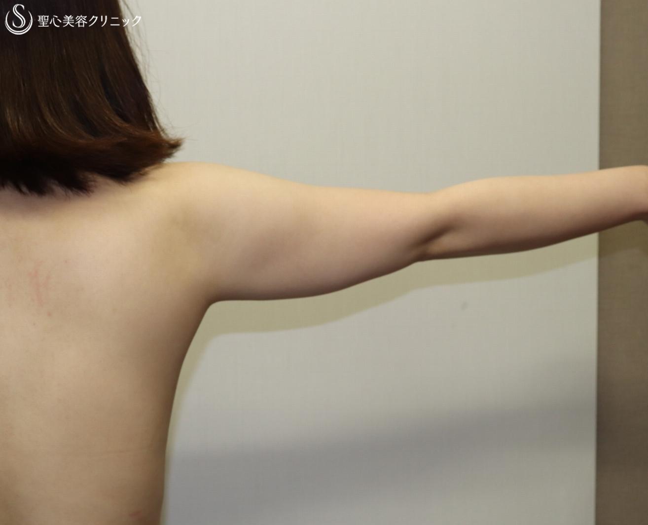 症例写真 術前 脂肪吸引