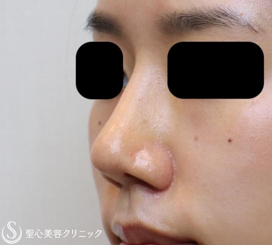 症例写真 術後 鼻プロテーゼ+鼻尖縮小+耳介軟骨移植
