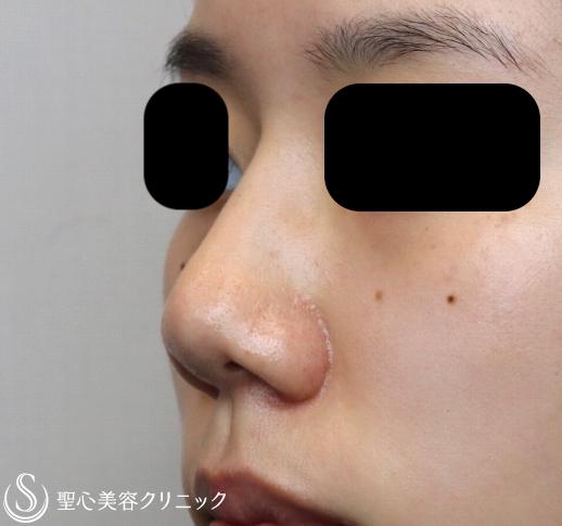 症例写真 術前 鼻プロテーゼ+鼻尖縮小+耳介軟骨移植