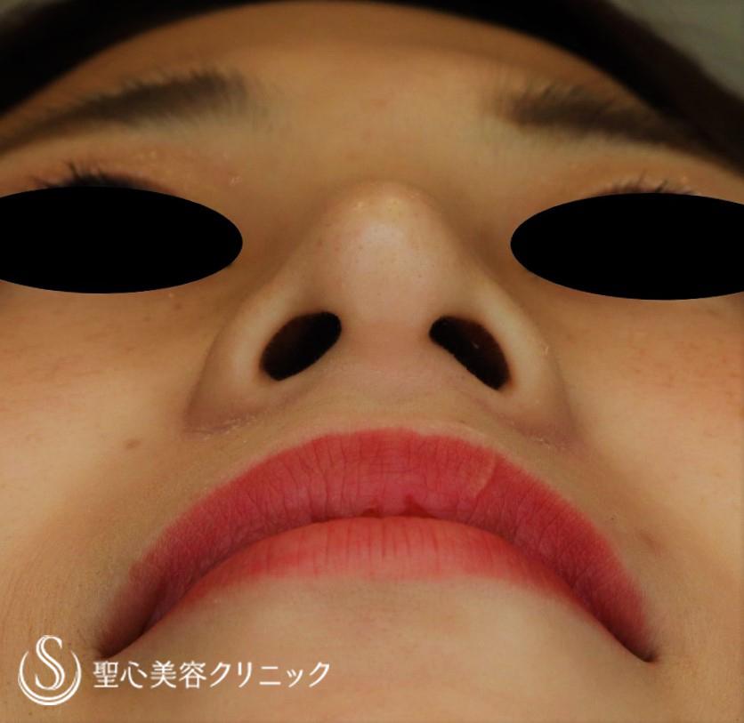 症例写真 術後 プロテーゼ+鼻尖縮小+鼻尖形成(耳介軟骨移植)