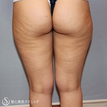 症例写真 術前 ベイザーリポ2.2脂肪吸引 太もも・お尻