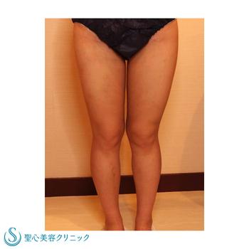 症例写真 術後 ベイザーリポ2.2脂肪吸引 太もも・ふくらはぎ