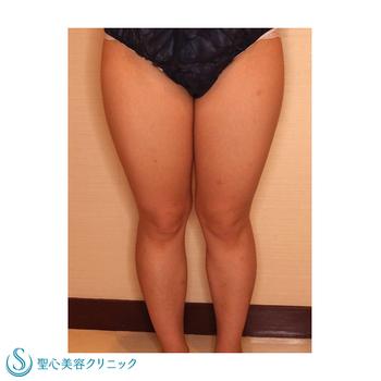 症例写真 術前 ベイザーリポ2.2脂肪吸引 太もも・ふくらはぎ