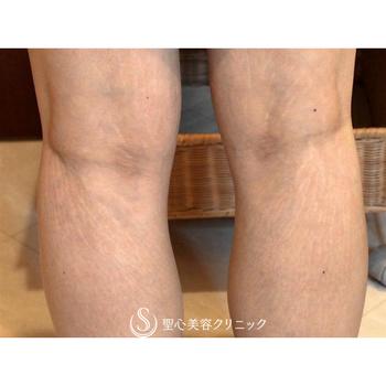 症例写真 術後 美容皮膚科 妊娠線・肉割れ