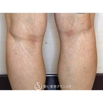 症例写真 術前 美容皮膚科 妊娠線・肉割れ
