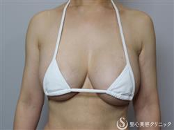 症例写真 術後 他院バッグ修正+セリューション豊胸術