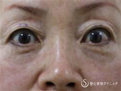 症例写真 術後 眼瞼下垂(埋没法)