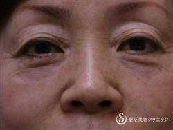 症例写真 術前 眼瞼下垂(埋没法)