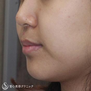 症例写真 術前 ベイザーリポ2.2脂肪吸引 頬・あご下