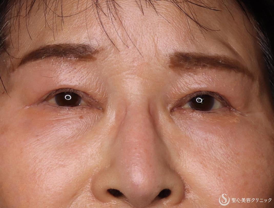 症例写真 術後 眼瞼下垂(切開法/腱膜縫縮法)+眉下切開法