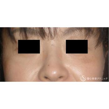 症例写真 術後 美容皮膚科 シミ・そばかす