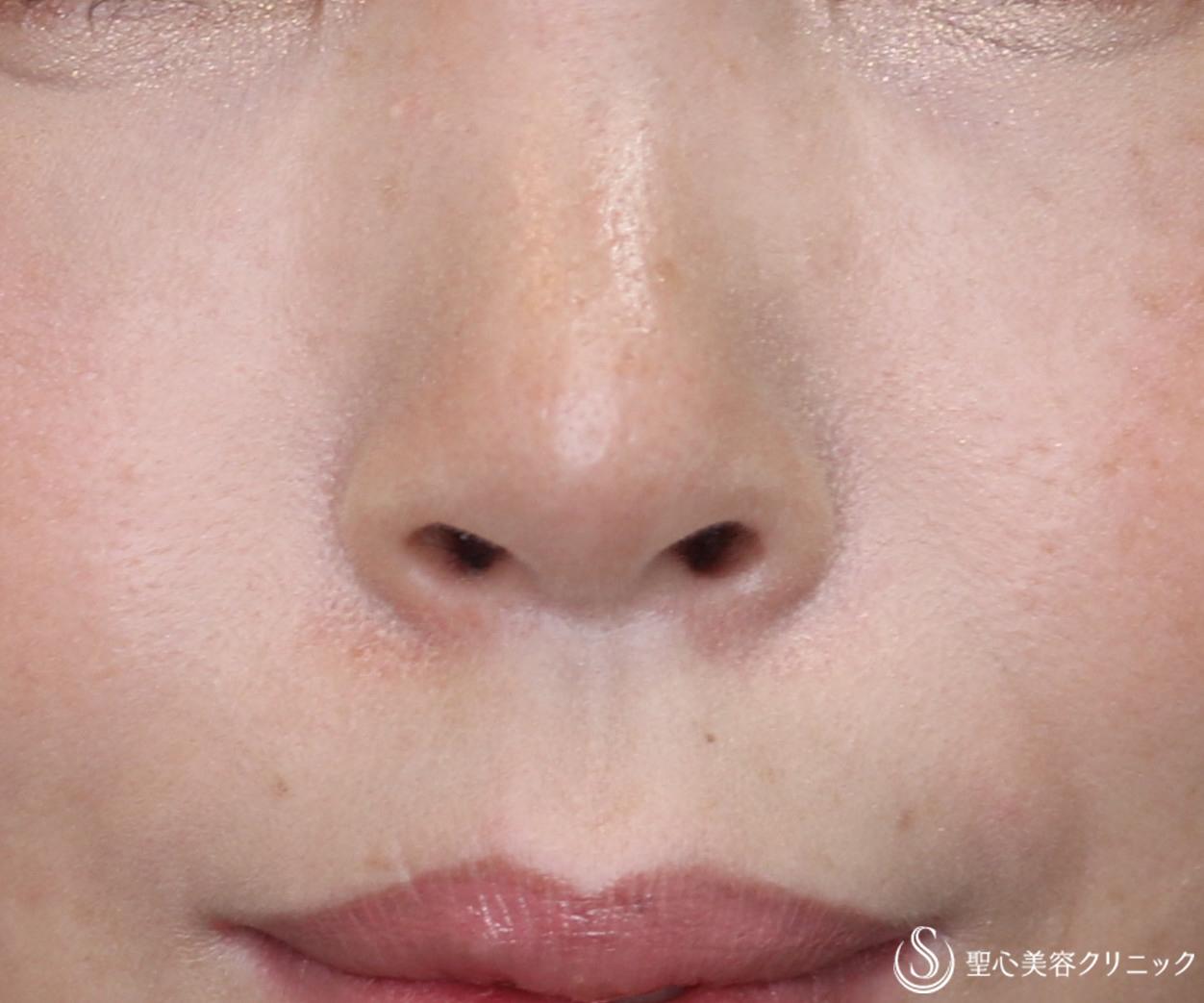 症例写真 術後 鼻孔縁下降術